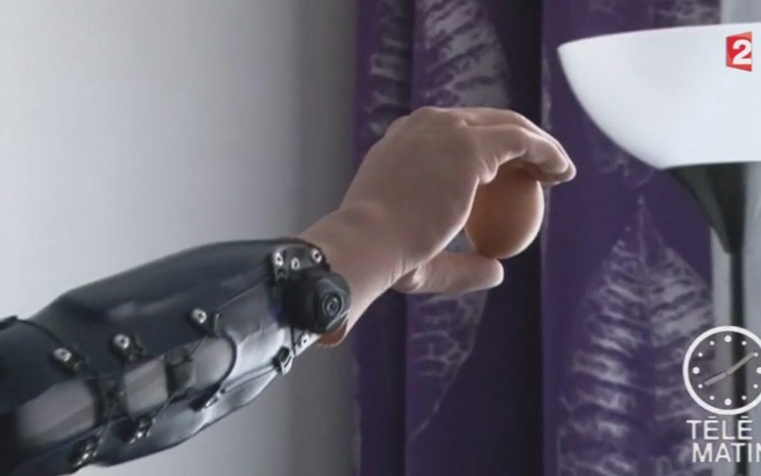 Prothèse bionique : 3 patients autrichiens retrouvent l'usage de leur main amputée