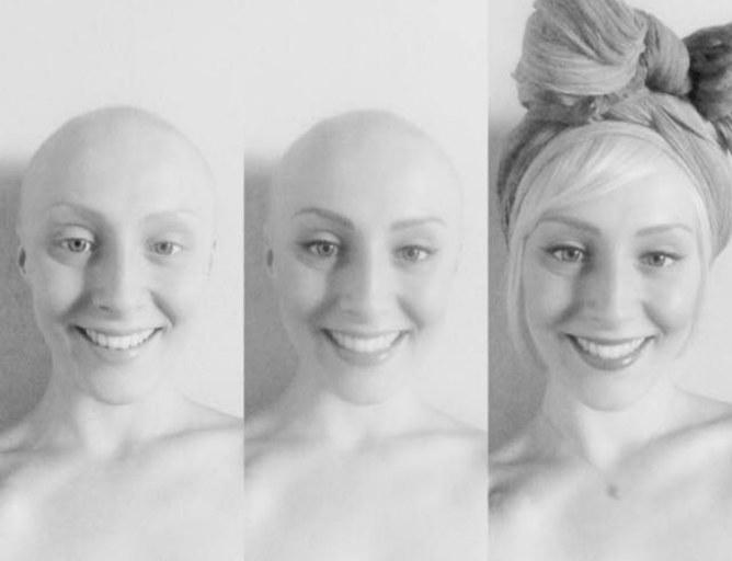 CANCER DU SEIN, JULIE, 29 ANS : «CRÉER MON BLOG BEAUTÉ A ÉTÉ THÉRAPEUTIQUE»